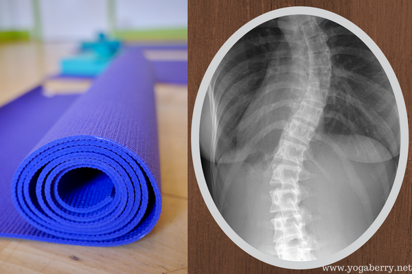 yoga and scoliosis